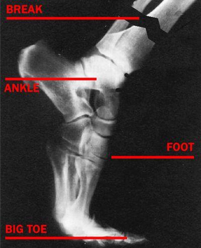 Foot_x-ray